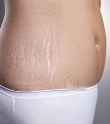 Coconut Oil for Stretch Marks Does it Work?